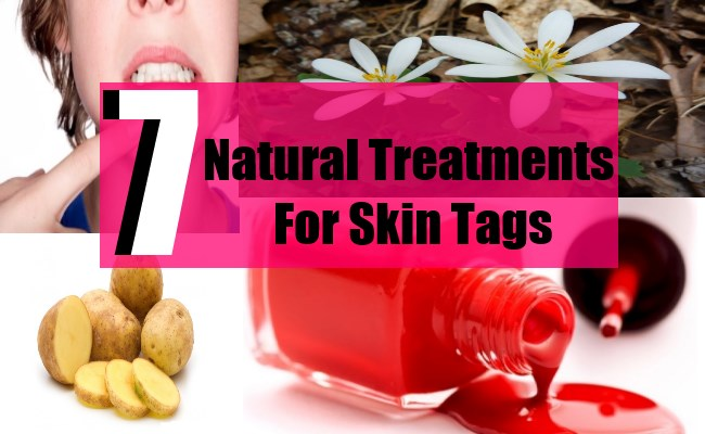7 Natural Treatments For Skin Tags