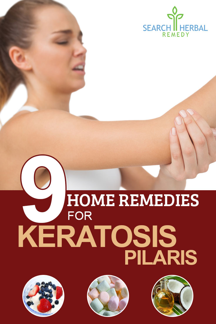 9-home-remedies-for-keratosis-pilaris