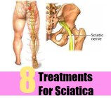 8 Treatments For Sciatica