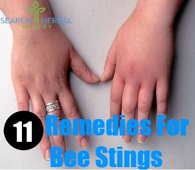11 Remedies For Bee Stings