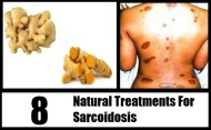 8 Natural Treatments For Sarcoidosis
