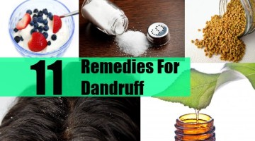 11 Remedies For Dandruff