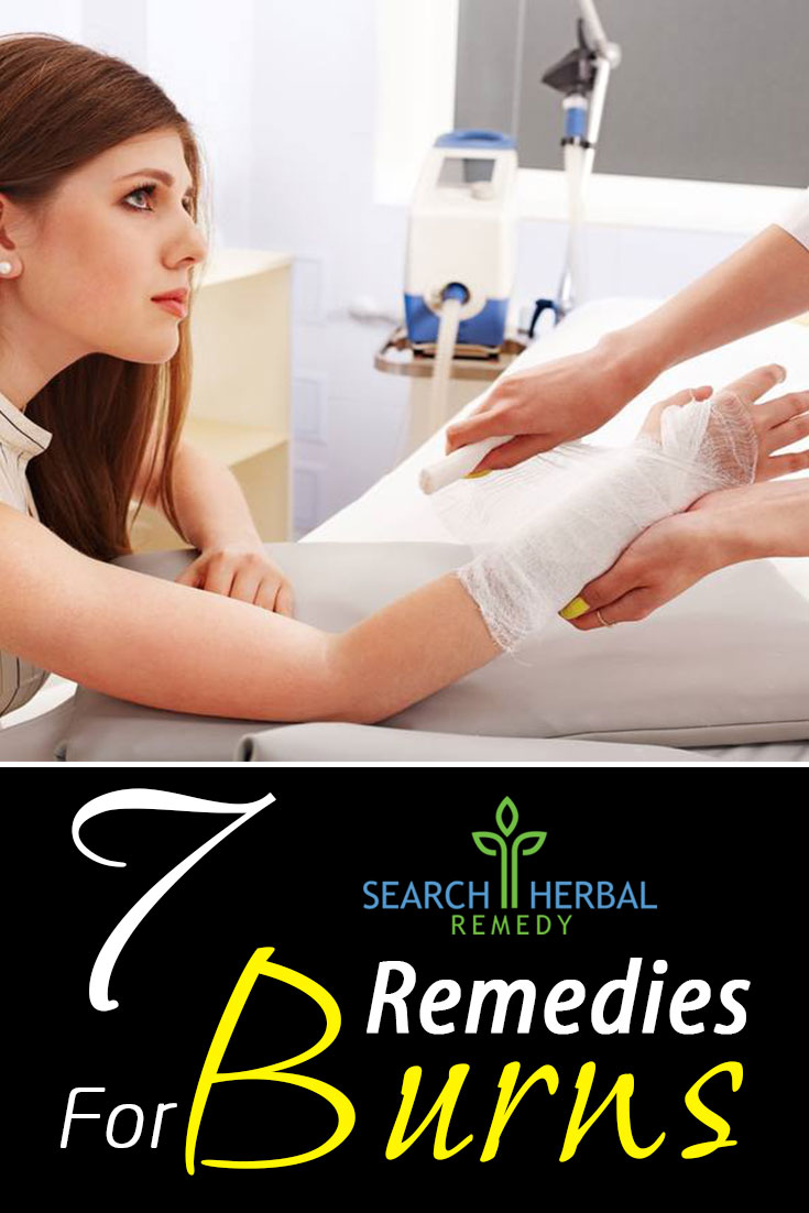 7-remedies-for-burns