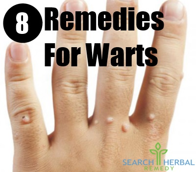 8 Remedies For Warts