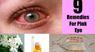 9 Remedies For Pink Eye