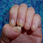 Fingernail Fungus Home Remedy