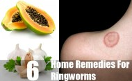 6 Effective Home Remedies For Ringworms