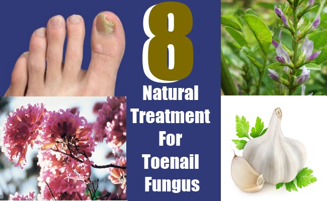 8 Natural Treatment For Toenail Fungus