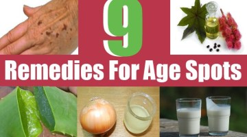9 Remedies For Age Spots