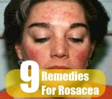 9 Remedies For Rosacea