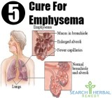 5 Cure For Emphysema