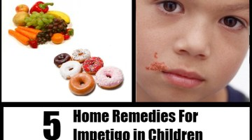 Impetigo in Children
