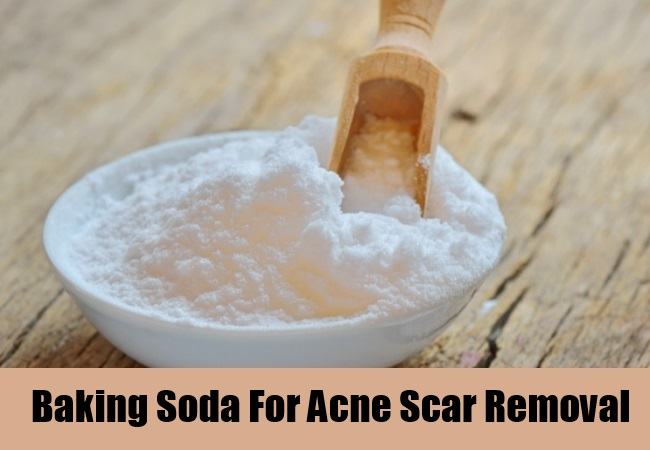 Baking Soda For Acne Scar Removal