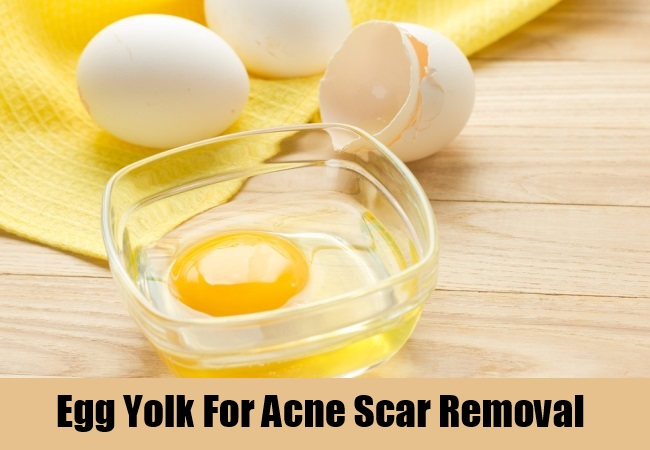 Egg Yolk For Acne Scar Removal