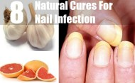 Top 8 Natural Cures For Nail Infection
