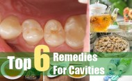 Top 6 Remedies For Cavities