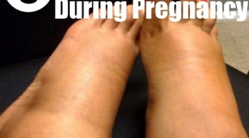 edema during pregnancy