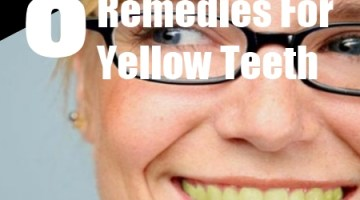 yellow teeth