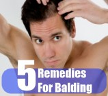 5 Remedies For Balding