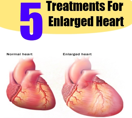 enlarged heart