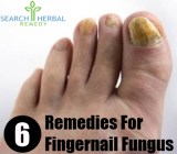 6 Remedies For Fingernail Fungus