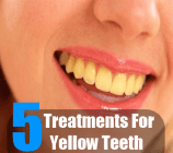 5 Treatments For Yellow Teeth