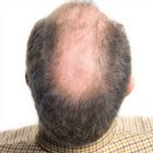 11 Best Natural Treatments For Balding