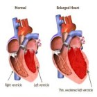 Herbs For Enlarged Heart