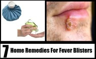 7 Best Home Remedies For Fever Blisters