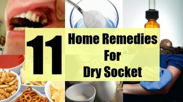 Top 11 Home Remedies For Dry Socket