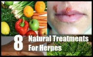 8 Effective Natural Treatments For Herpes