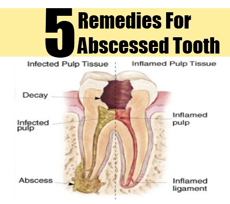 19 Best Abscess Tooth Remedies Causes and Symptoms