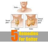 5 Remedies For Goiter