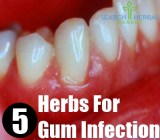 5 Herbs For Gum Infection