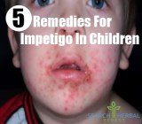 5 Remedies For Impetigo In Children