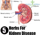 5 Herbs For Kidney Disease