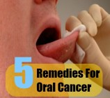 5 Remedies For Oral Cancer
