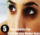 5 Treatments For Dark Circles Under Eyes