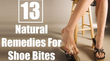 Natural Remedies For Shoe Bites