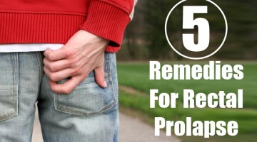 DIY remedies for Rectal Prolapse