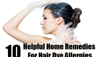 Helpful Home Remedies For Hair Dye Allergies