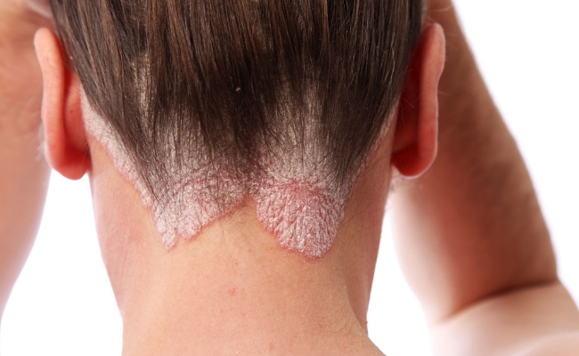 Scalp Eczema And Psoriasis