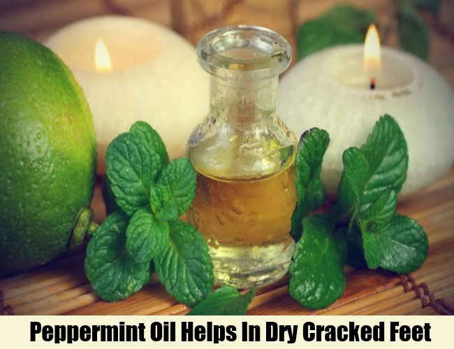 Peppermint Oil Helps In Dry Cracked Feet