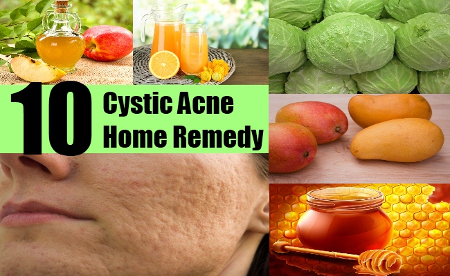 10 Cystic Acne Home Remedy