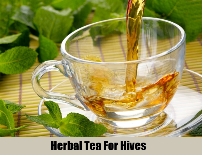 Herbal Tea For Hives
