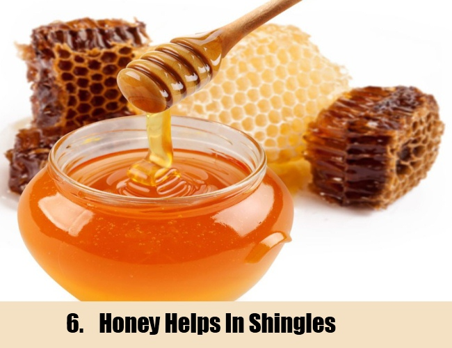 Honey For Shingles