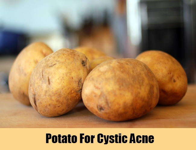 Potato For Cystic Acne