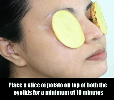 Potato Slices