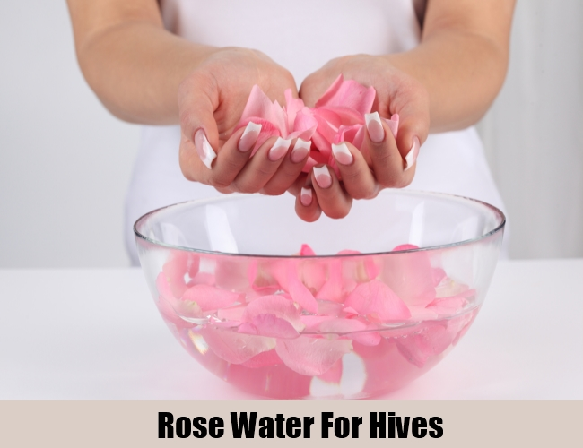 Rose Water For Hives