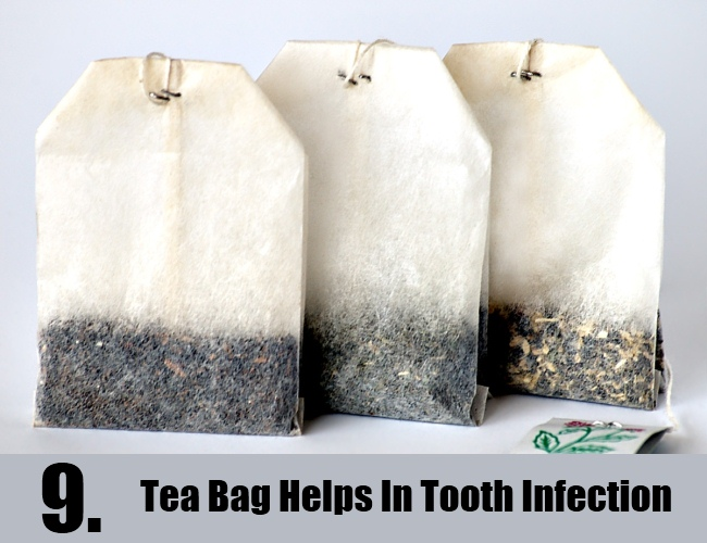 Tea Bag Helps In Tooth Infection